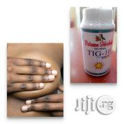 TIG-10 (Best Anti-cancer Herbal Drug) | Vitamins & Supplements for sale in Lagos State