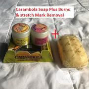 Carambola Burns & Stretch Mark Remover Cream With Soap | Bath & Body for sale in Lagos State, Ifako-Ijaiye