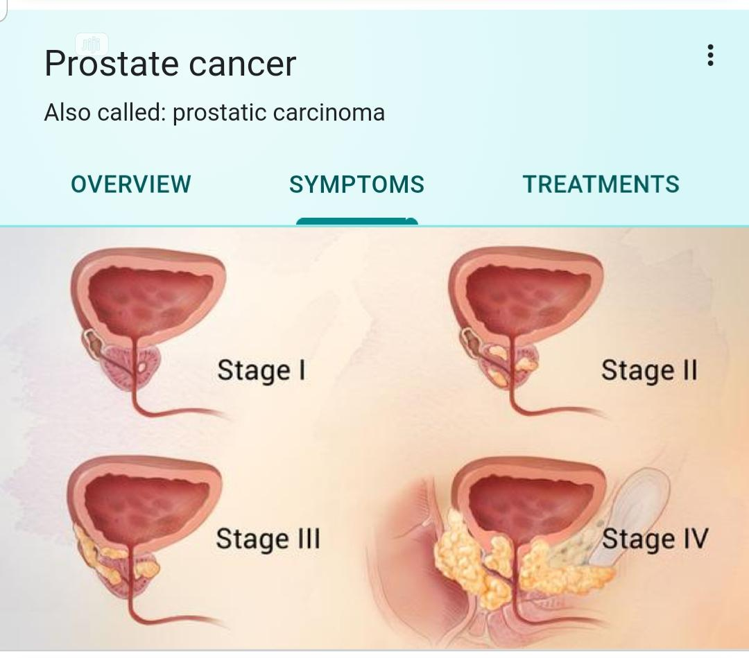 Swissgarde Prostrate Cancer Natural Remedy Free Delivery | Vitamins & Supplements for sale in Surulere, Lagos State, Nigeria